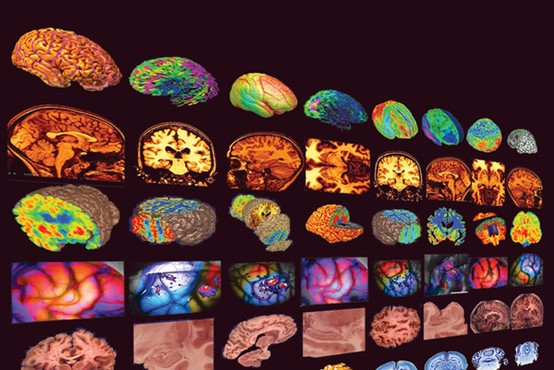 Človeški možgani in iskanje odgovora na vprašanje: Zakaj je bil Einstein to, kar je bil?