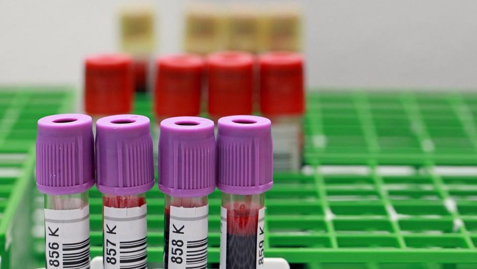 Virus Zahodnega Nila: Odslej nanj testirajo tudi kri krvodajalcev (foto: Profimedia)
