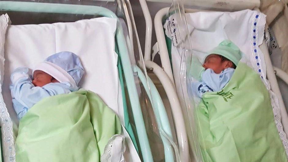V Zagrebu pisali zgodovino, z operacijo uspešno ločili siamski dvojčici (foto: Profimedia)