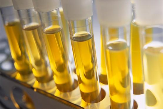 Britanski znanstveniki razvijajo urinski test za odkrivanje raka prostate