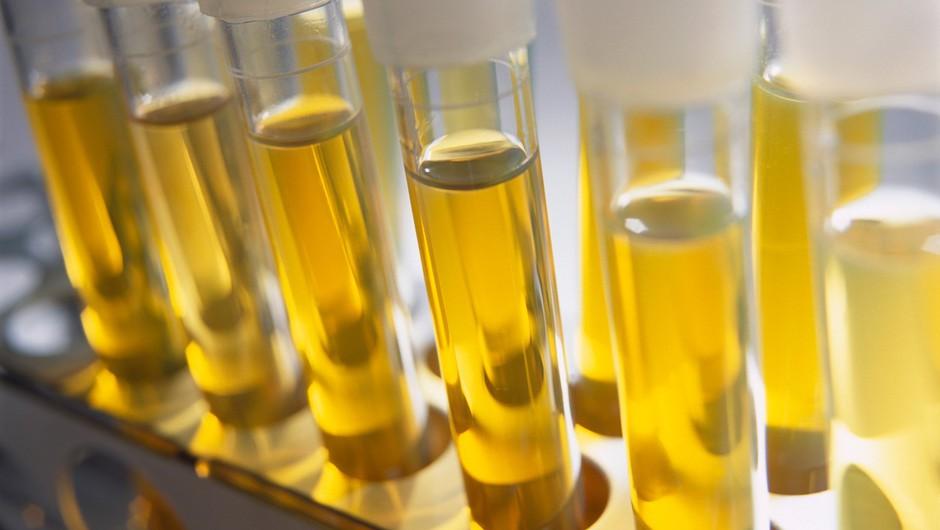 Britanski znanstveniki razvijajo urinski test za odkrivanje raka prostate (foto: profimedia)