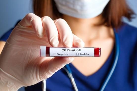 Kitajski znanstveniki izolirali novi koronavirus