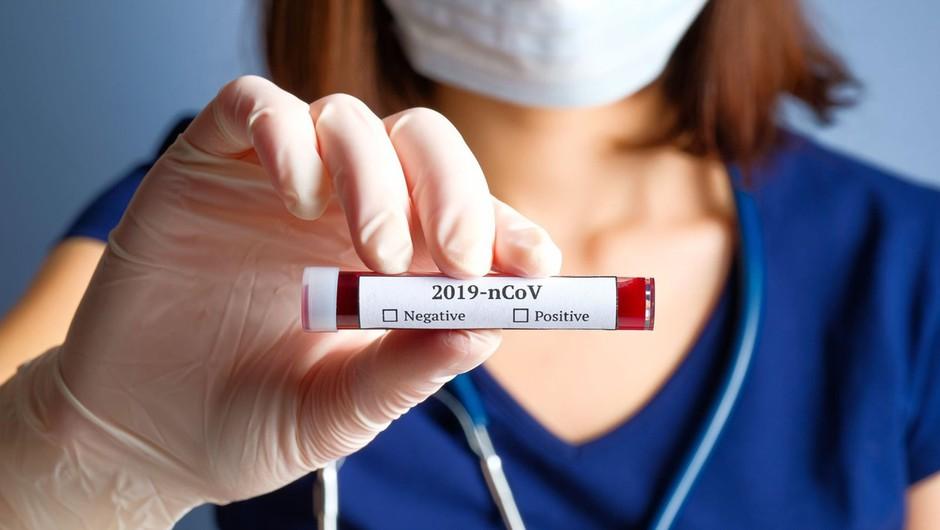 Kitajski znanstveniki izolirali novi koronavirus (foto: profimedia)