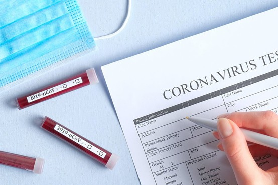Rusija in Kitajska razvijata cepivo, v Avstraliji vzgojili nov koronavirus