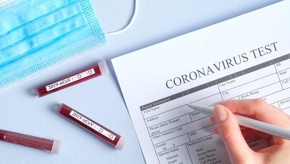 Rusija in Kitajska razvijata cepivo, v Avstraliji vzgojili nov koronavirus (foto: profimedia)