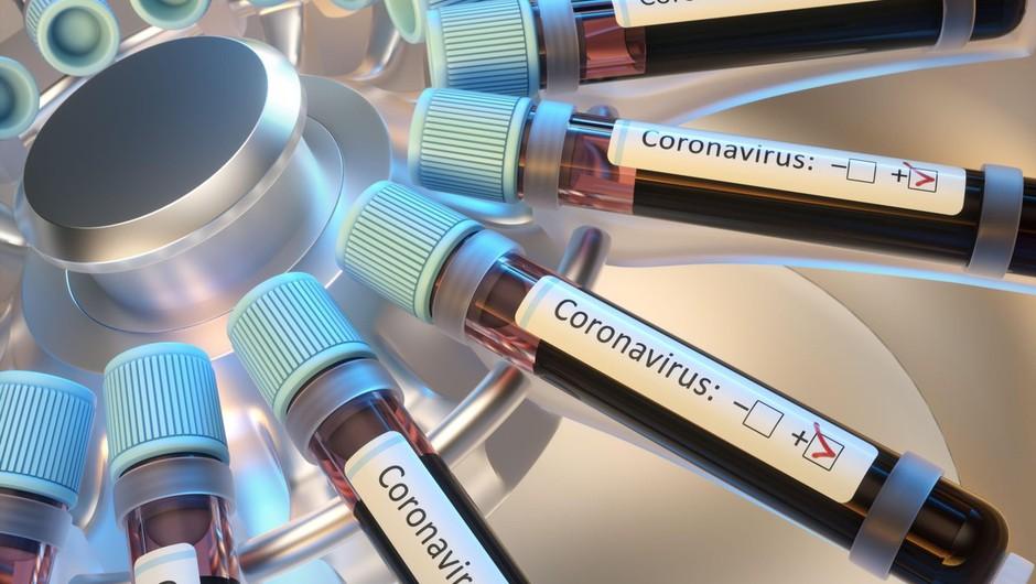 Interaktivni e-zemljevid, ki V ŽIVO spremlja širjenje koronavirusa po svetu! (foto: profimedia)
