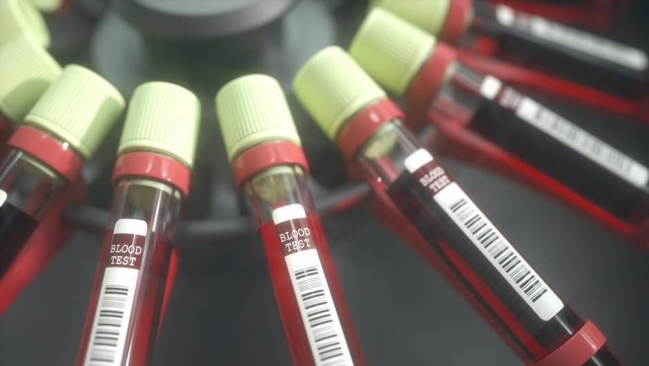 Britanski znanstveniki z velikim prebojem v razvoju cepiva proti koronavirusu (foto: profimedia)