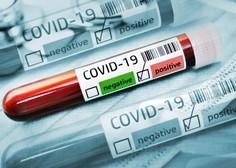 Po svetu kroži osem mutacij novega koronavirusa, ki je sprožil pandemijo