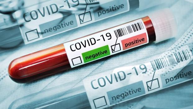 Po svetu kroži osem mutacij novega koronavirusa, ki je sprožil pandemijo (foto: profimedia)