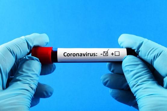 V raziskavi o razširjenosti koronavirusa odkrili aktivni primer okužbe