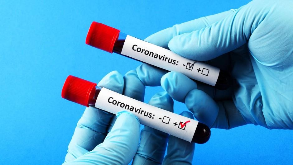 Na praznični ponedeljek 6 novih okužb, tri nove smrti (foto: Profimedia)