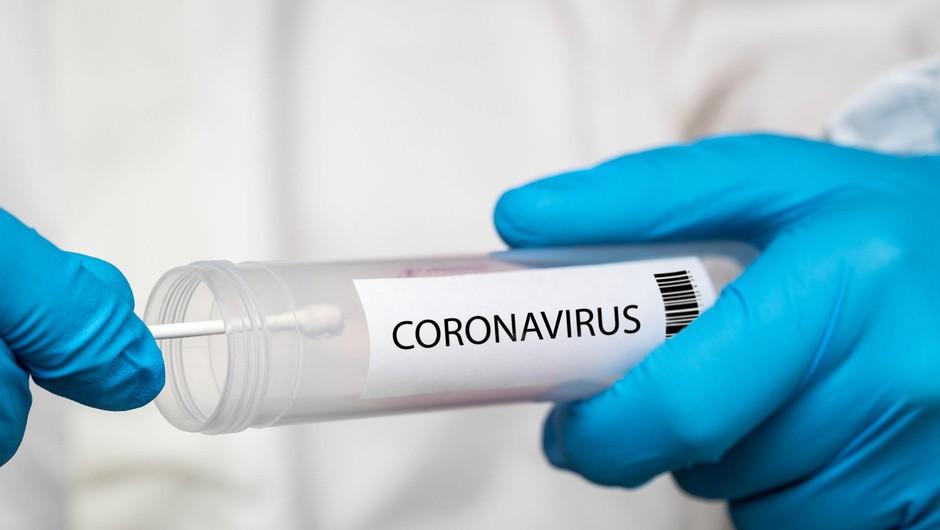 Statistika v Sloveniji: 11 potrjenih okužb, dve novi smrti (foto: Profimedia)