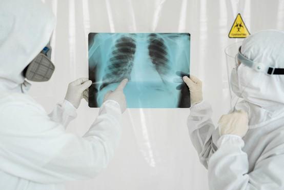 Včasih okužba pljuč pri bolnikih s koronavirusom poteka zelo prikrito
