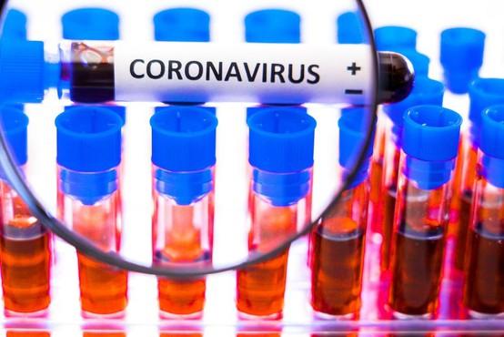 V raziskavi o razširjenosti koronavirusa pri nas so odvzeli vse vzorce