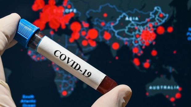 Je covid-19 prebolelo tudi do 85-krat več ljudi, kot kažejo uradni zaznamki? (foto: profimedia)