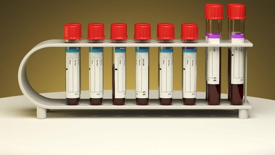 Raziskava o pojavnosti virusa v Sloveniji kaže, da je z njim v stik prišel vsak 30. (foto: profimedia)