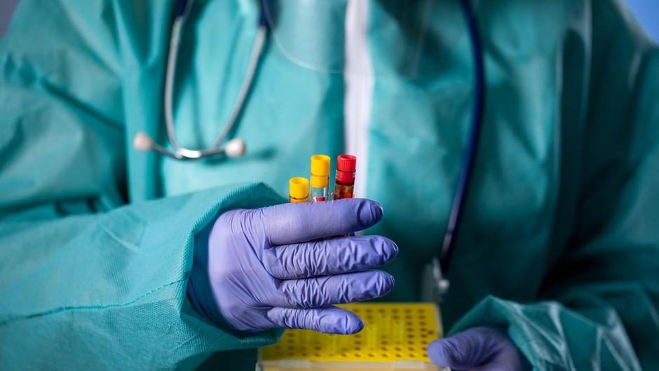 Slovenija: v nedeljo 537 testov in trije okuženi (foto: profimedia)