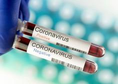 Statistika v Sloveniji: Nova potrjena okužba, umrl ni noben bolnik