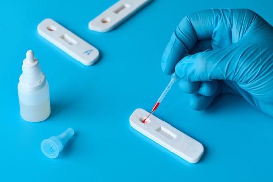 V Sloveniji spet dan brez okužb in smrti zaradi koronavirusa