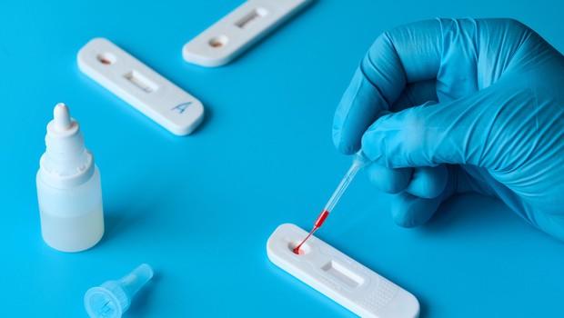 Okužbo s koronavirusom potrdili pri dveh osebah (foto: Profimedia)