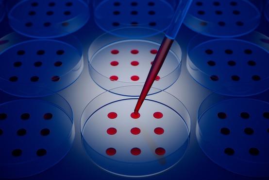 Krvna skupina lahko vpliva na potek covida-19