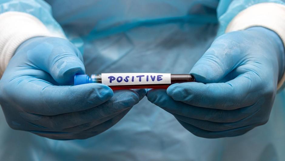 V Sloveniji potrdili 21 okužb s koronavirusom. Največ po 16. aprilu. (foto: Profimedia)