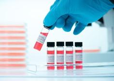 Rusija odobrila novo zdravilo koronavir