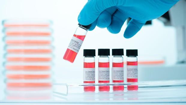 Rusija odobrila novo zdravilo koronavir (foto: Profimedia)