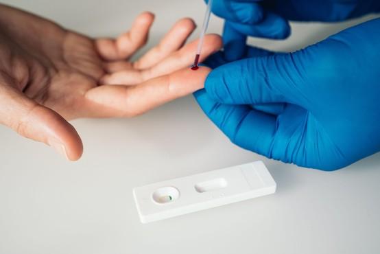 Hitri testi v Sloveniji le za življenjsko ogrožene bolnike