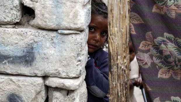 Unicef opozarja na več kot dva milijona podhranjenih otrok v Jemnu (foto: Xinhua/STA)