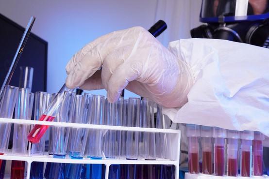V Rusiji v začetni fazi uspešno drugo cepivo proti covidu-19
