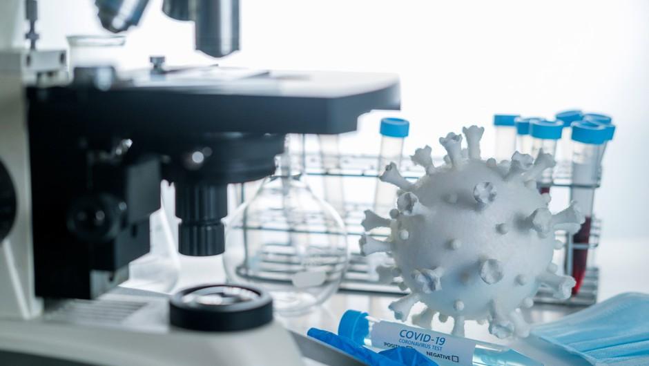 Znanstvenikom iz Oxforda uspelo razviti 5-minutni test za covid-19 (foto: profimedia)
