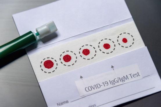 Hitri antigenski testi so manj zanesljivi od testov PCR. Kako natančni pa so slednji?