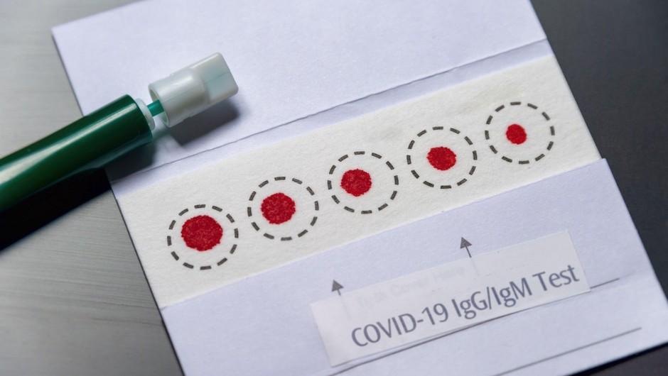 Hitri antigenski testi so manj zanesljivi od testov PCR. Kako natančni pa so slednji? (foto: profimedia)