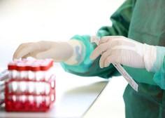 Na Hrvaškem odkrili brazilsko različico novega koronavirusa