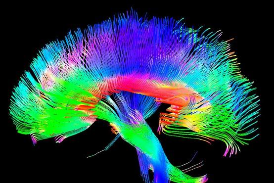 40 dni vadbe za možgane, ki bo podžgala vaše umske sposobnosti