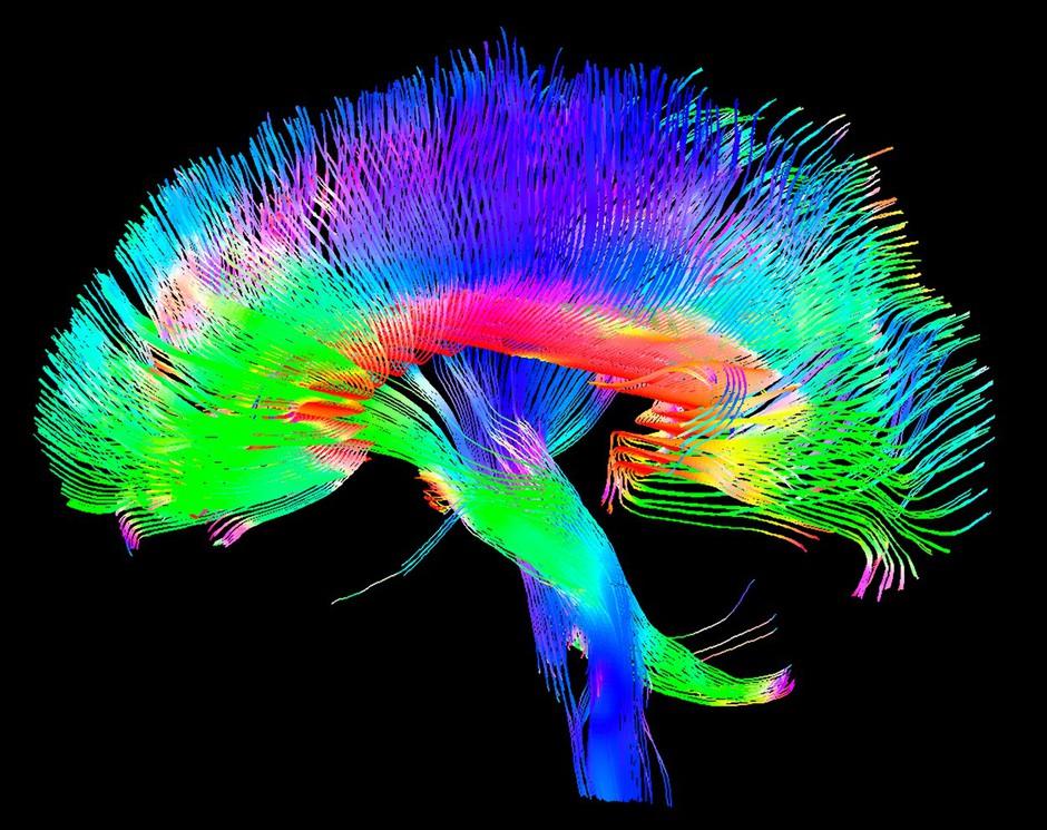 40 dni vadbe za možgane, ki bo podžgala vaše umske sposobnosti (foto: profimedia)