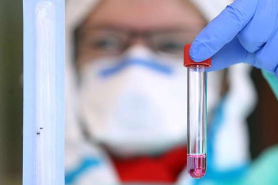 Ponovna okužba s koronavirusom redka, pogostejša med starejšimi