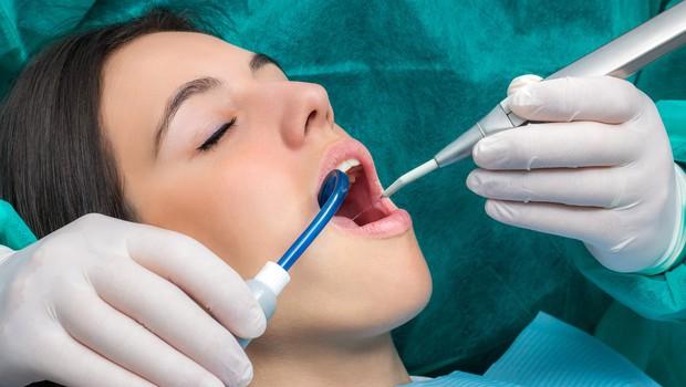 Svetovni dam ustnega zdravja: Tvoja usta, tvoj ponos (foto: profimedia)