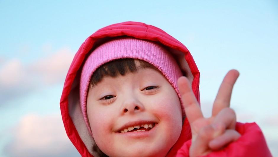 Svetovni dan Downovega sindroma letos namenjen osveščanju družbe (foto: profimedia)