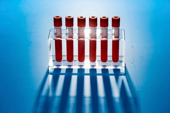 Imunost na koronavirus bi lahko trajala več let (morda celo doživljenjsko)!